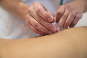 Acupuncture needles being put in body